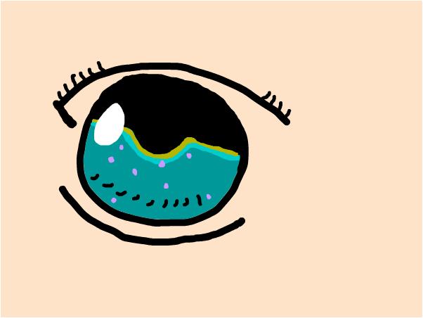 My eye...again-SweetTart