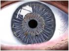 wide eye